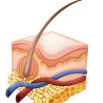 頭皮ニキビの5つの原因と3つの対策方法