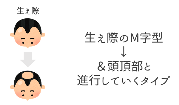 AGA_M型.png