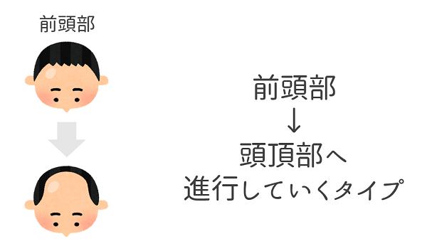 AGA_前頭部型.png