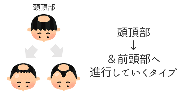 AGA_頭頂部型.png
